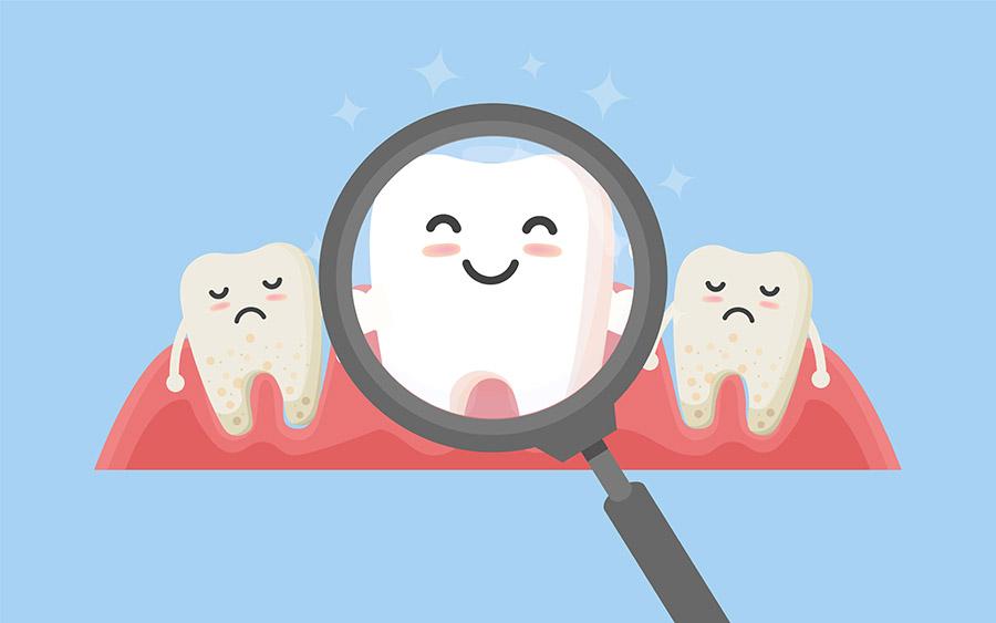 tartrul dentar
